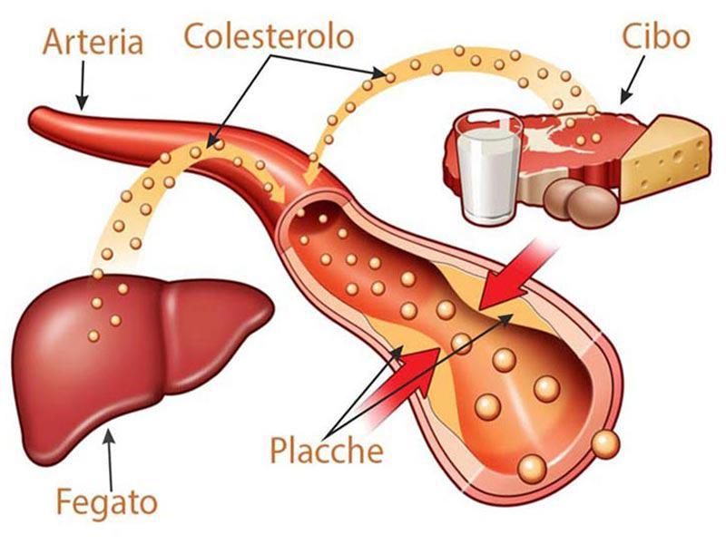 colesterolo-alto.jpg