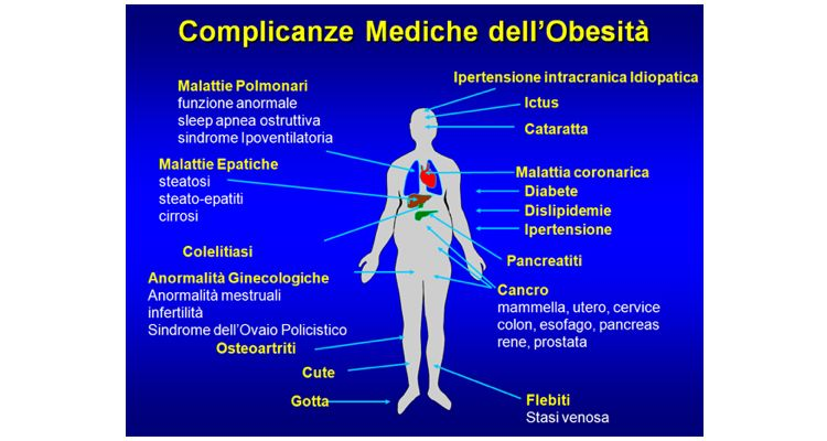 obesit%C3%A0-001.jpg